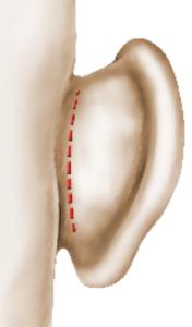 Incision de l'oreille